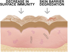 Decrease In Surface Immunity & Skin Barrier Degredation